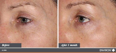 Environ Skin Care YE Eye Gel before and after