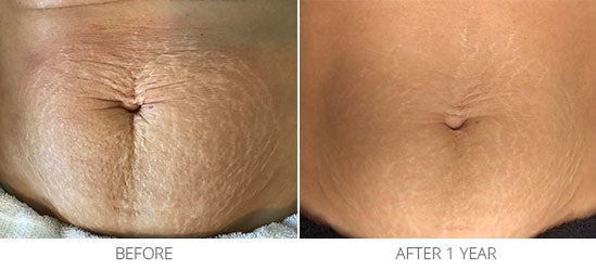 Stretch Mark Treatment
