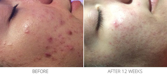 Problematic Skin/Acne Scarring