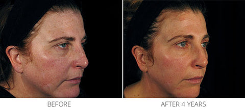 Appearance of Uneven Skin Tone, Tone, Texture & Photodamage