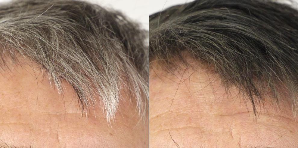 This was an initial treatment for GH, a man in his mid-fifties with strong, healthy, salt and pepper hair. His hair had never been treated or dyed before. When we treat men's hair, we deliberately leave some gray at the sideburn and fringes. - Men's Brown Formula