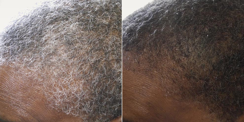 S. just cut her dreads when this treatment was done and it revealed gray hair underneath. Ninety minutes later, her gray was almost entirely gone save for a few stubborn hairs on the top of her forehead. - Women's Dark Formula