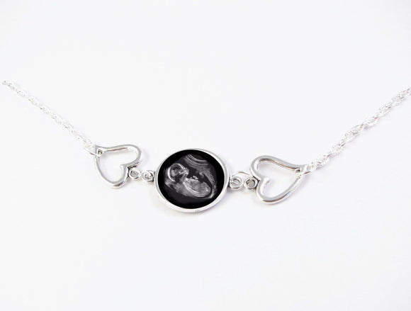 Baby Heart Sonogram Necklace, Photo Jewelry - Jewelrylized.com