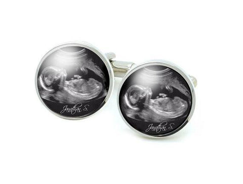 New Baby Sonogram Cufflinks, New Father Gift - Jewelrylized