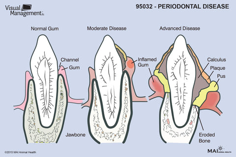 EduPad™ - Periodontal Disease