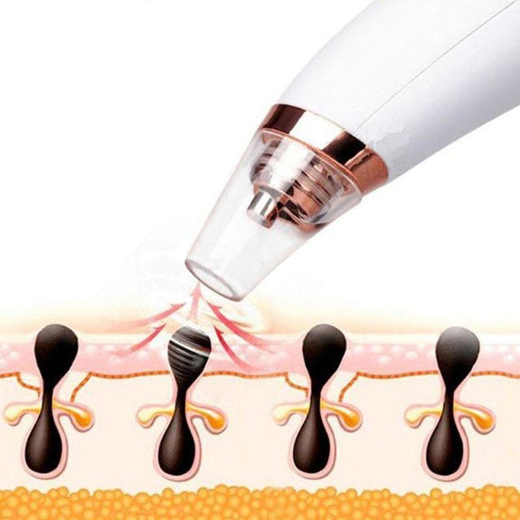 Visual Pore and Blackhead Cleaning Vacuum with Built-in Camera-Daily Steals