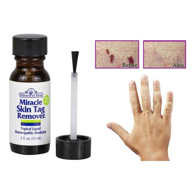 Miracle Skin Tag Remover With Aloe-Daily Steals