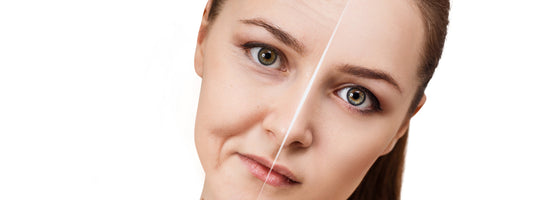 Fighting Adult Acne