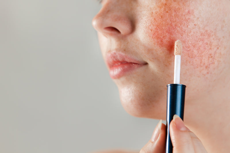 specific products for rosacea skin