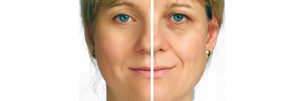 You can fight wrinkles without radical methods