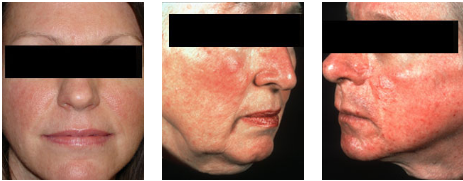 Rosacea occurs in various forms