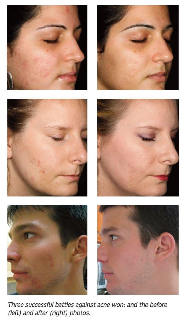 Whitepaper - Understanding Acne - What You Thought You Knew - Lycopene Skin Care