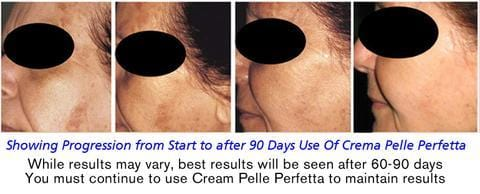 Crema Pelle Perfetta – Dermatologist Recommended Treatment for Rosacea, Dark Spots, Sun Damage, and Blemishes with All Natural Ingredients - Buy 2 and Save - Lycopene Skin Care