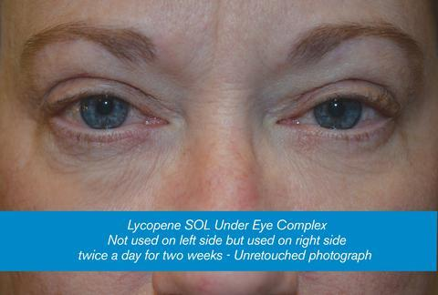 Lycopene Wrinkle Eraser - Erase Wrinkles in Weeks without Botox - Lycopene Skin Care