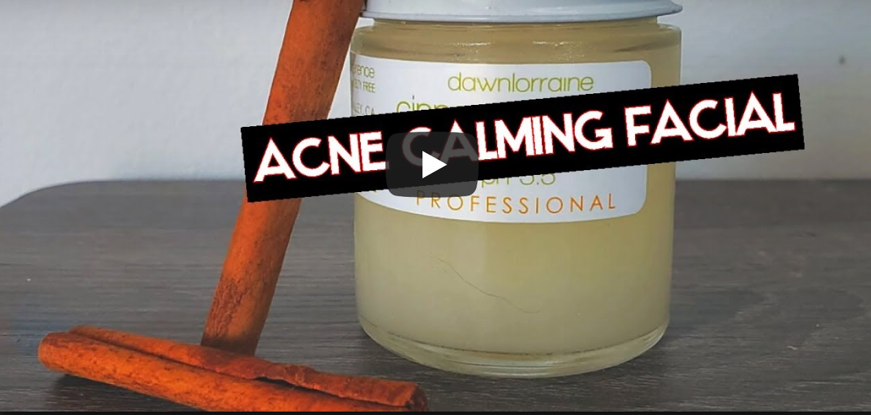 Acne Calming Facial feat. Cinnamon Detox Clarifying Peel with Vanity Beauty, LLC