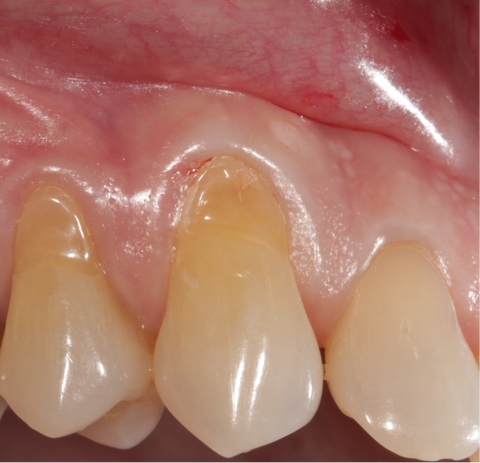 How to slove tooth abrasion and clean teeth properly.