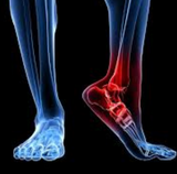 Trigger Point Therapy - Treating Achilles Tendinitis