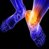 Trigger Point Therapy - Treating Ankle Sprains, Weak Ankles, and Instability
