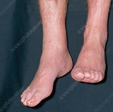 Trigger Point Therapy - Foot Drop