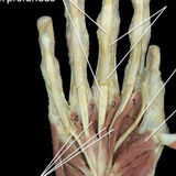 Trigger Point Therapy - Intrinsic Hand Muscles