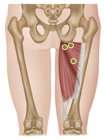 Adductor Magnus Trigger Points