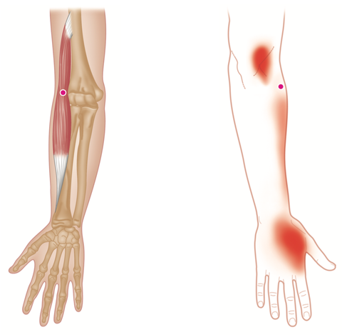 Brachioradialis Trigger Points