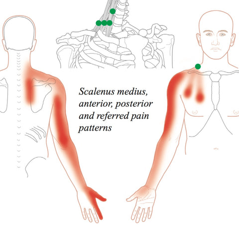 Scalenes Trigger Points