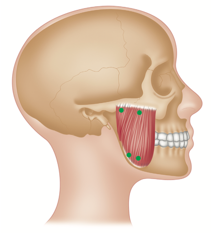Masseter Trigger Points