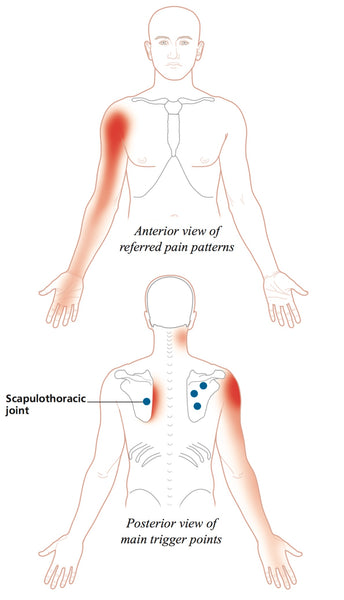 Trigger Point Therapy Referred Pain Patterns Niel Asher Education Enchanting Referred Pain Patterns