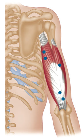 Triceps Trigger Points