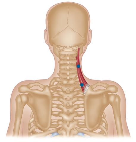 Levator Scapulae Common Trigger Point Sites