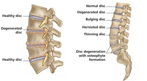 Trigger Point Therapy  Degenerative Disc Disease     Niel