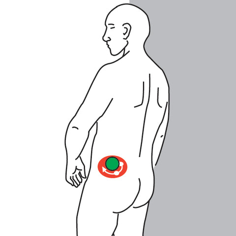 Gluteus Maximus Trigger Point Self Help