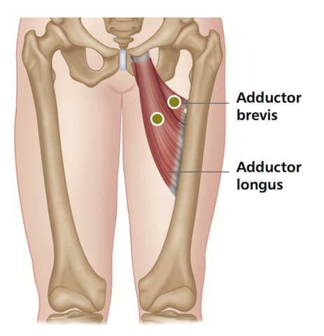 Hip Adductors Trigger Points