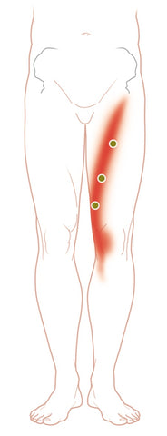 Sartorius Trigger Points and Pain Map