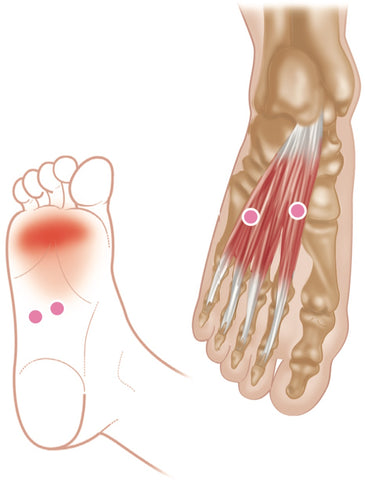 Flexor Digitorum Brevis Trigger Points