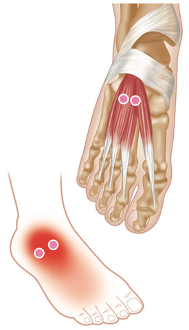 Trigger Point Therapy Superficial Muscles Of The Foot