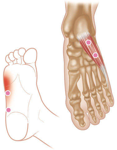 Abductor Digiti Minimi Trigger Points