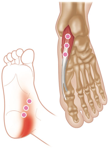 Trigger Points Abductor Hallucis