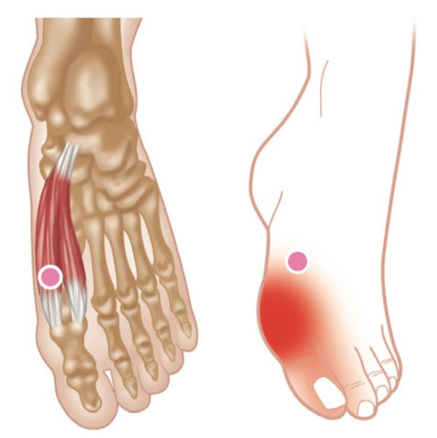 Flexor Hallucis Brevis Trigger Points