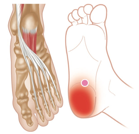 Quadratus Plantae Trigger Points