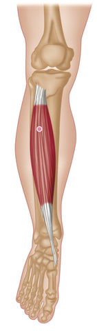 Tibialis Anterior Trigger Points