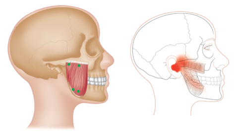 Masseter Trigger Points TMJD