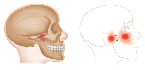 Medial Pterygoid Trigger Points