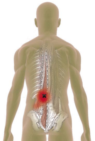 Multifidi Trigger Points - Referred Pain Patterns