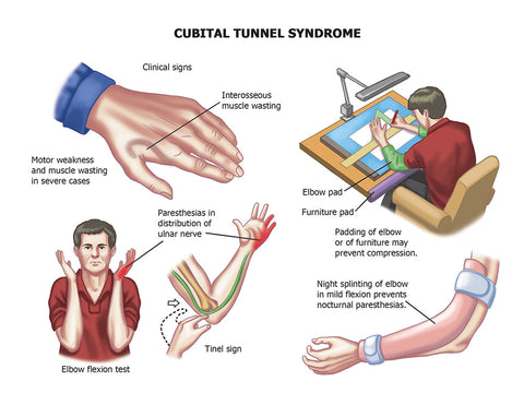 Cubital Tunnel Syndrome Symptoms Treatment