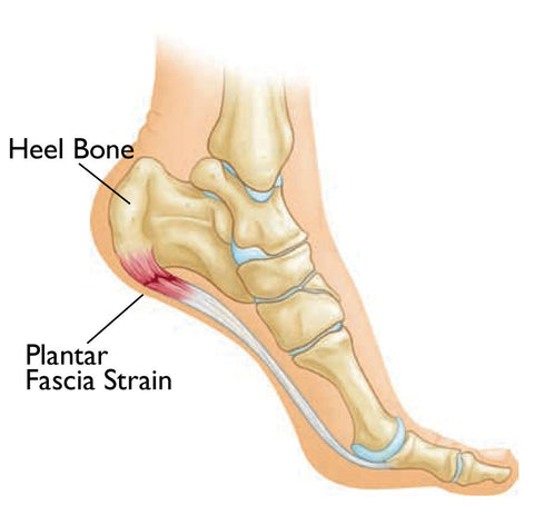 Plantar Fasciitis Trigger Point Massage