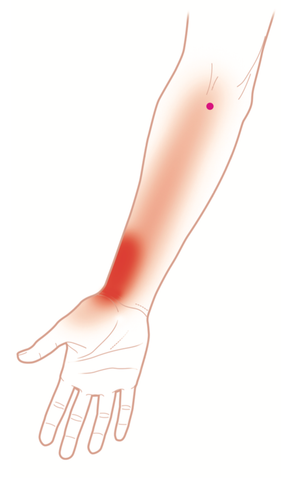 Pronator Teres Trigger Points
