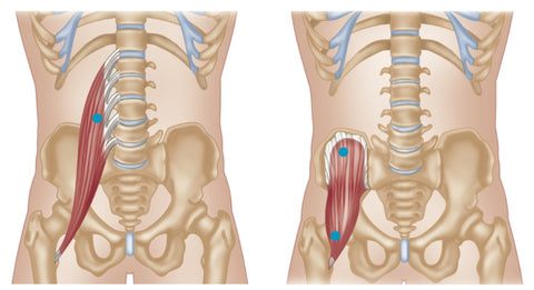 Psoas Major (Left) and Iliacus (Right) Trigger Points