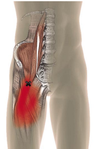 Psoas Trigger Point Pain Referral